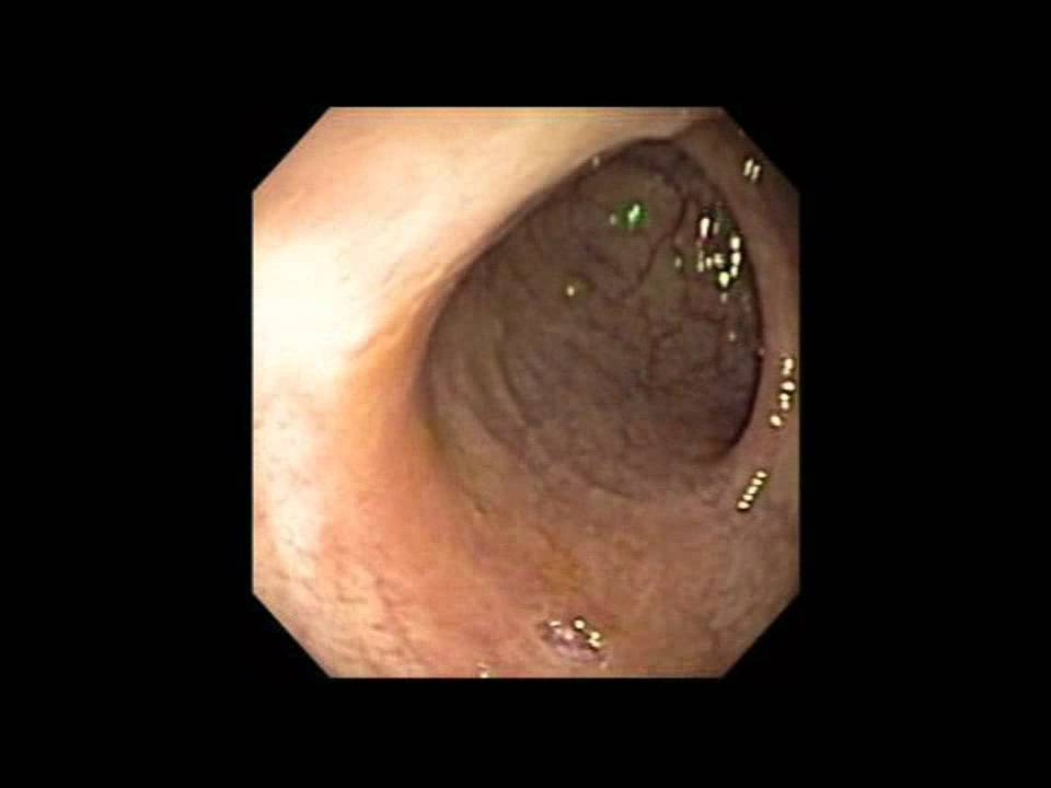 Exacto Cold Snare | US Endoscopy