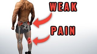 FIX Your Knee Pain: Stop Ignoring This Muscle! (Full Exercise Routine)