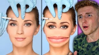 girl-gets-surgery-to-look-like-her-snapchat-filter