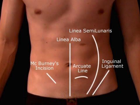 Appendicitis Ultrasound Lecture Version 01