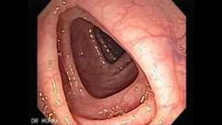 Colonoscopia Normal