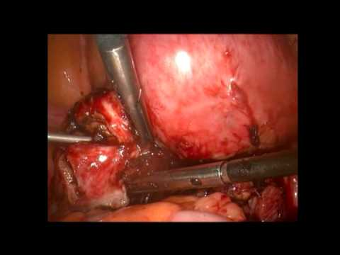 30min full time dissection of frozen pelvis and colorectal endometriosis using plasma energy