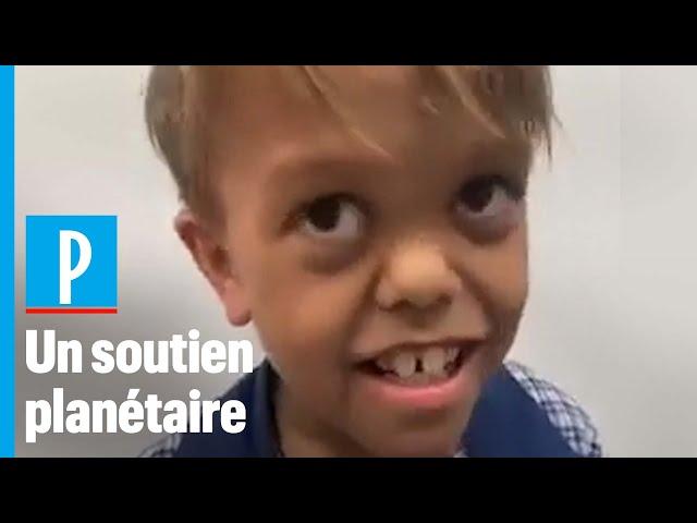 Quaden harcelé\: stars et anonymes se mobilisent pour l'enfant atteint de nanisme