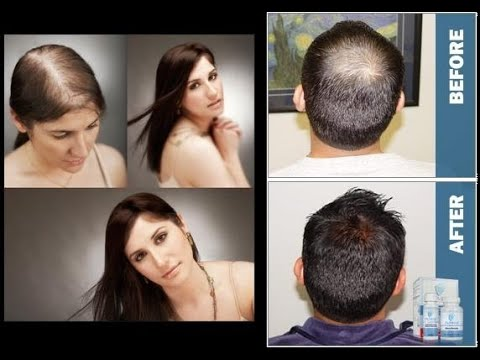 provillus-:-best-treatment-to-hair-loss-for-men-&-women-review