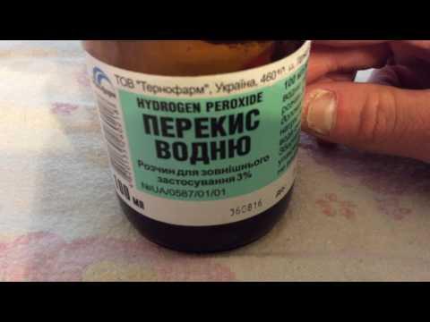Лечение ногтевого грибка (онихомикоз)