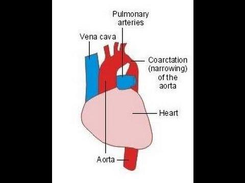 Coarctation Of The Aorta Youtube