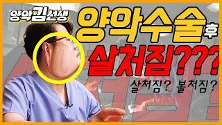 양악수술후 살처짐의 모든 것을 알려드림!!