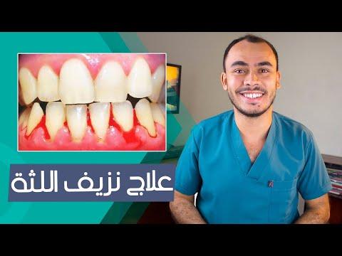 ليه بيحصل ( نزيف اللثة ) مع غسيل الاسنان ؟ التهاب اللثة و جير الاسنان