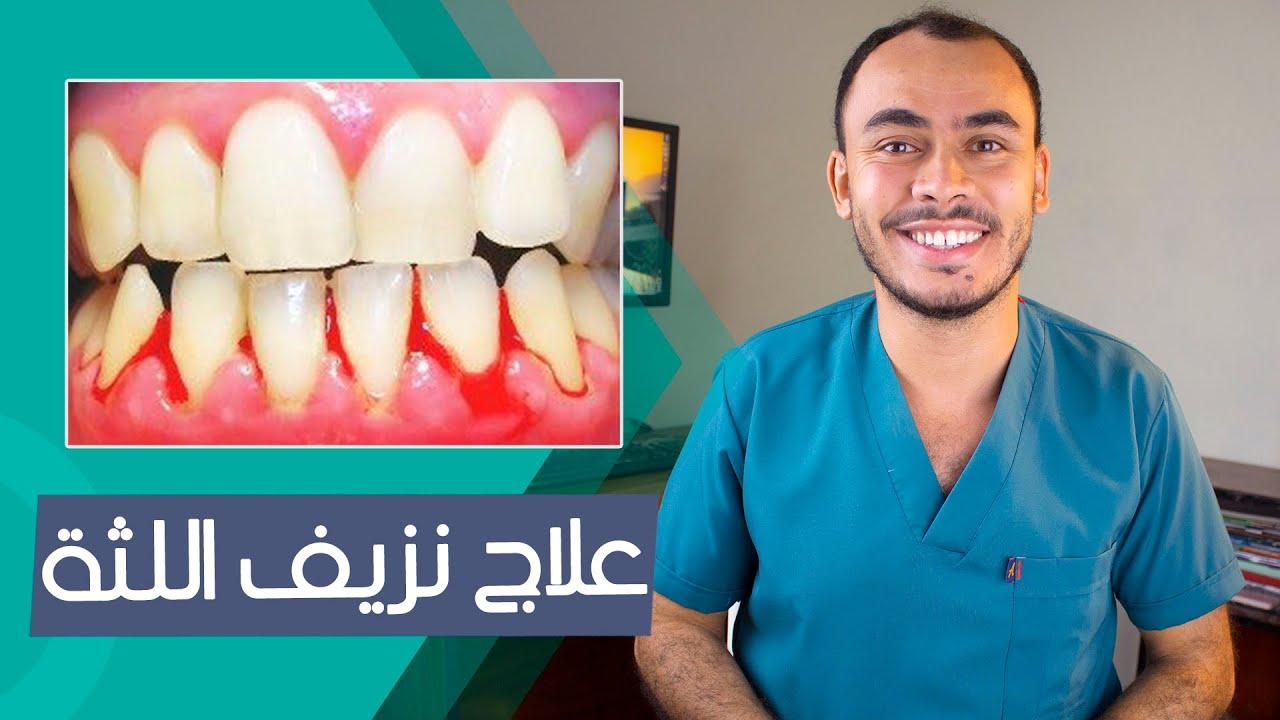 تنظيف الأسنان بالخيط مع وجود التقويم Youtube