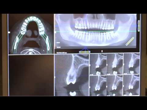 Dental Implants Ellenton, Bradenton & Parish, FL