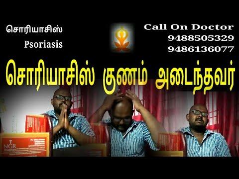சொரியாசிஸ் மருத்துவம்   Psoriasis Removal   Psoriasis Removal Tamil
