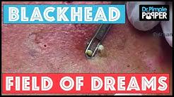 hqdefault - Dreams About Giant Pimples