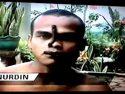 Makhluk pemakan ulat bulu. Courtesy of Trans TV Indonesia 12:10 WIB 14 April 2011