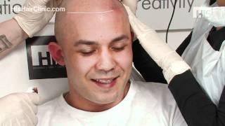 Hair Loss Cure - Jayson