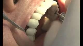 Bir günde implant diş nasıl yapılır?(M.Sc.Dt. Zafer KAZAK konu hakkında bilgi veriyor., 2014-10-01T15:21:37.000Z)