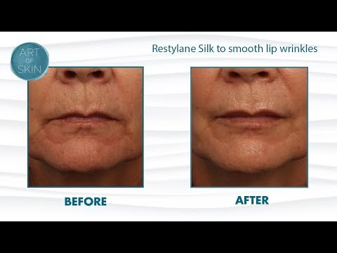 Restylane Silk injection for lips and lip lines - YouTube