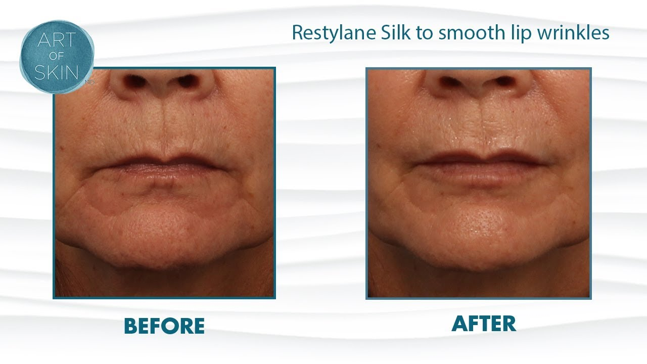 Restylane Silk injection for lips and lip lines