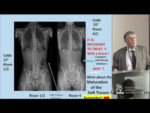 Keynote Address by Jean Dubousset, MD ~ Spinal Deformity: Getting a 3D Perspective