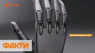 Украинские бионические протезы: управляются силой мысли и в 16 раз дешевле аналогов