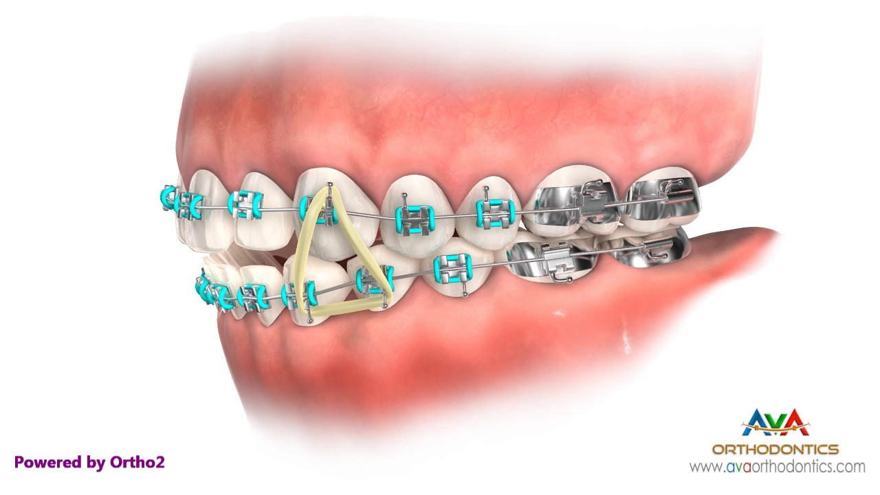 Rubber Bands Ava Orthodontics Invisalign