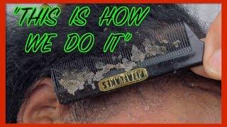 Sensitive Scalp|Dandruff Flakes|Scalp Problems