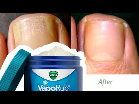 Vicks Vaporub for Toenail Fungus Reviews - YouTube