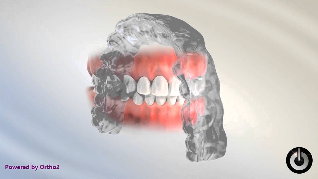 Orthodontic Retention - Orthodontist Cedarburg WI | Mantel