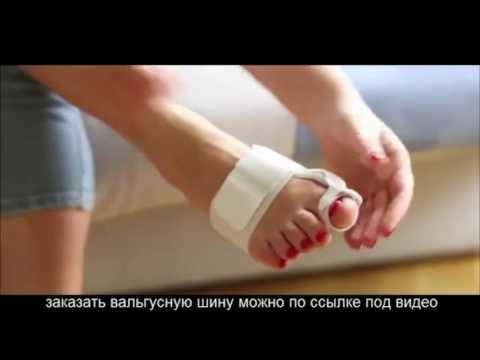 артрит кистей рук симптомы