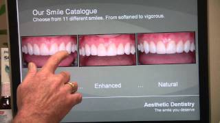 San Diego Cosmetic Dentist- Dental Health with Dr. C - Check Out a New Smile at the Smile Library Thumbnail