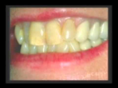Dentist Whittier CA, Orthodontic Procedures, Dr. Kamran Sahabi