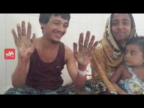 Tree Man of Bangladesh Cured After Undergoing 16 Surgeries | YOYO TV English