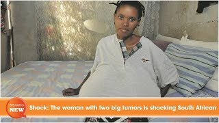 Shock: The woman with two big tumors is shocking South African