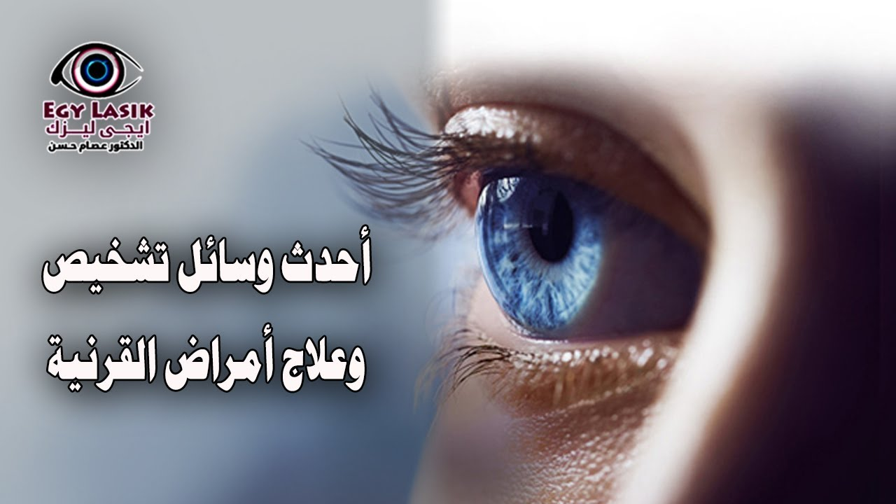 a1e2ade46 أحدث وسائل تشخيص وعلاج أمراض قرنية العين - YouTube