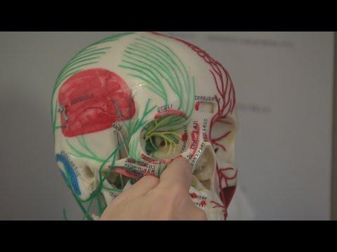 Migraine trigger foods