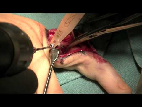 ORIF Proximal Phalanx Surgery by Dr. Thomas Trumble