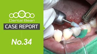 (ENG) Mn premolar immediate placement \u0026 immediate loading with Ezi crown with septum drill