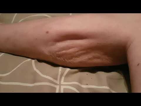 Severe Leg Cramp
