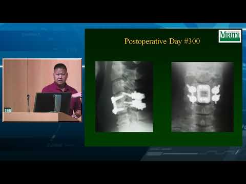 Cervical Facet Fractures and Dislocations