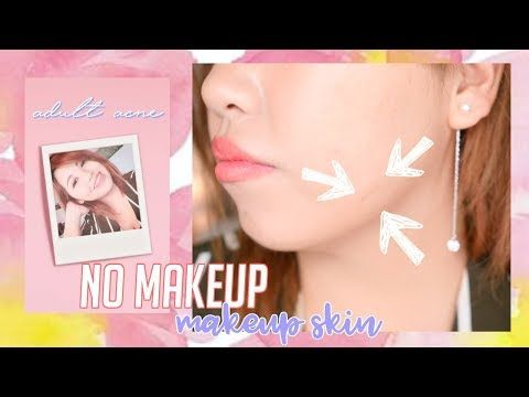No Makeup Skin Look for Adult Acne! NATURAL BB Cream!