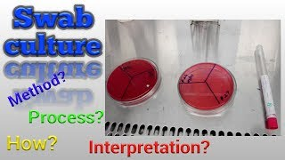 Swab culture test procedure Microbiology