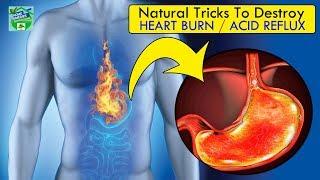 13 Natural Tricks To Destroy Acid Reflux / Heartburn   Home Remedies