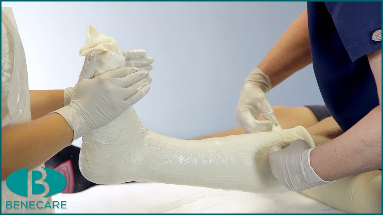 how to apply a below knee cast using plaster of paris youtube