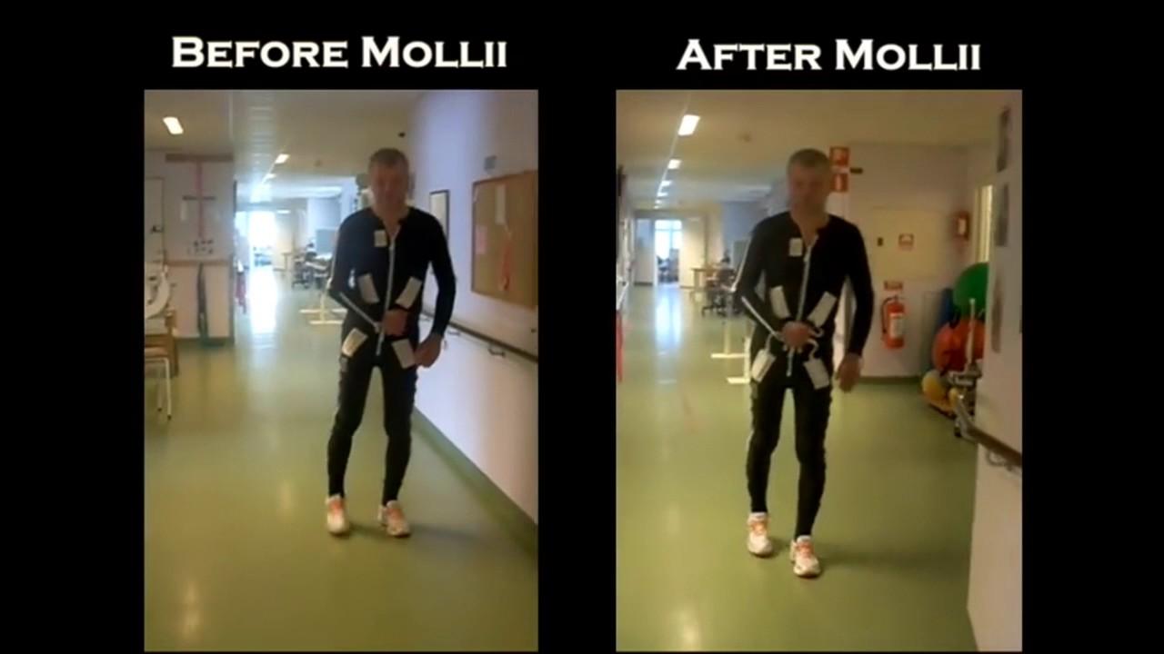 Gangfunktion med og uden Mollii