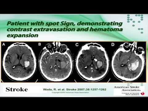 Intracerebral Hemorrhage by Sebastian Koch, MD