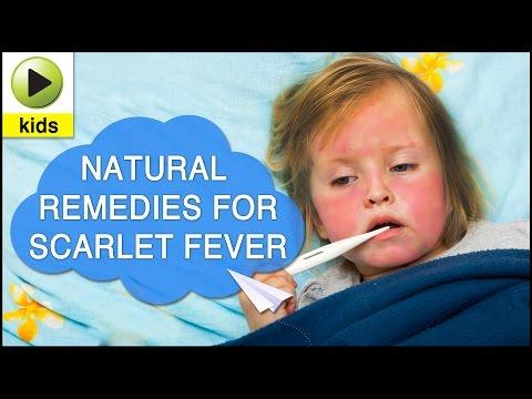 Kids Health: Scarlet Fever - Natural Home Remedies for Scarlet Fever