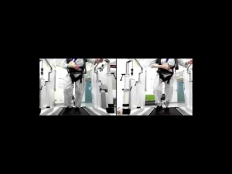 Walkbot rehabilitation training (Acute Stroke case)