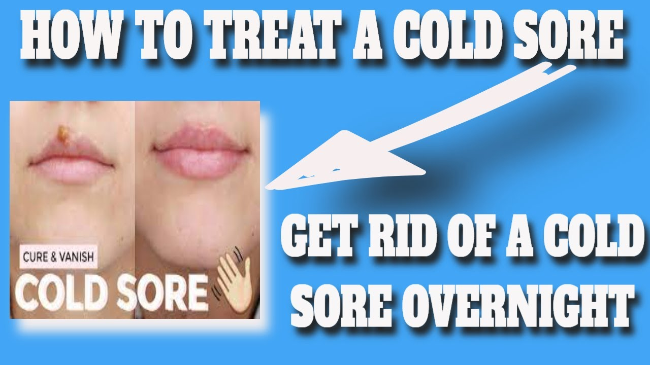 HOW TO TREAT A COLD SORE  Cold Sores  Cold Sore Treatment  Causes Signs u0026 Symptoms  COLD SORES