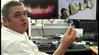 видео Металлокерамические коронки меняют цвет? Немецкий Имплантологический Центр