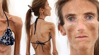 World's Skinniest Woman (Update), Valeria Levitin,  Anorexia, Diet, Eating Disorders