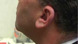 A closer look at the invisible Phonak Nano in the ear hearing aid